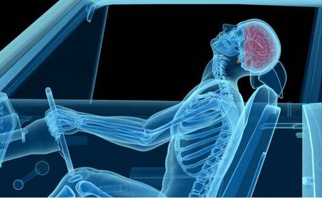 Whiplash- Chiropractic Care